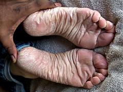 SPERM SOAK for Lyn's dry soles